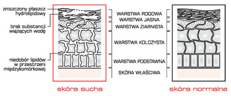 skora_sucha_normalna